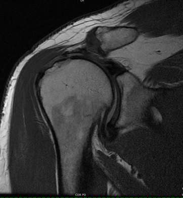 Musculoskeletal MRI Exams Shoulder